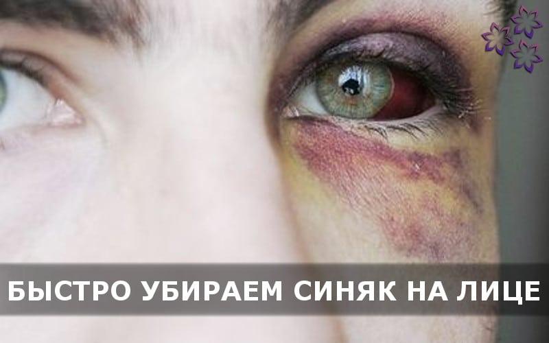 Как лечить гематому на лице после удара