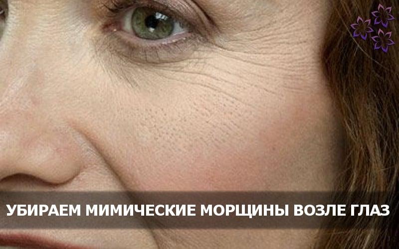 Мимические морщины вокруг глаз: как избавиться навсегда