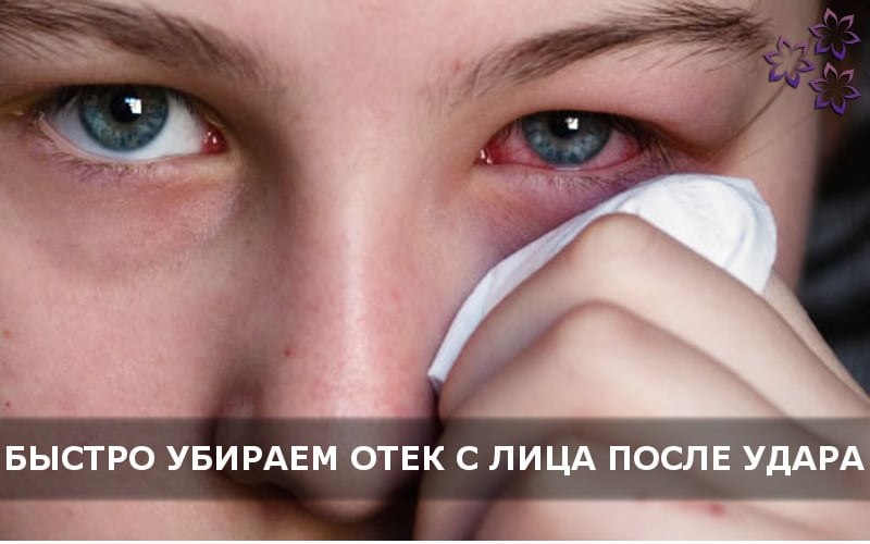 Как быстро снять отек с лица после удара в домашних условиях