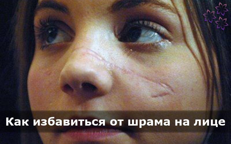 Как убрать шрам на лице в домашних условиях